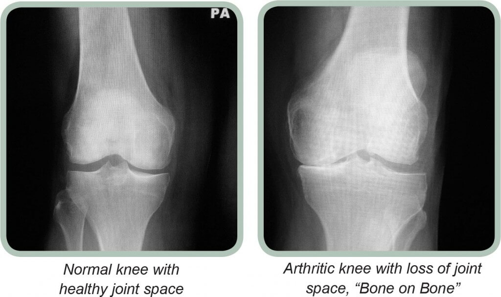 X-Ray of osteoarthritis in the knee joint
