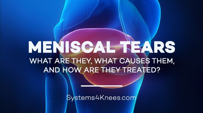 Meniscal Tears –What Are They, What Causes Them, And How Are They Treated?